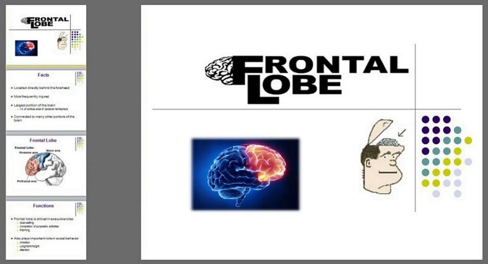 دانلود پاور پوینت لوب فرونتال(پیشانی) (Frontal Lobe) به زبان انگلیسی