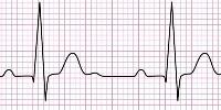 دانلود رایگان پاورپوینت آشنایی با اصول و تفسیر نوار قلب یا ECG