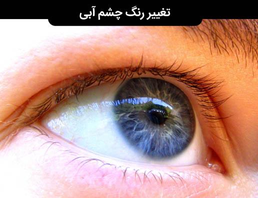 تغییر رنگ چشم به رنگ آبی در 2 الی 4 ماه