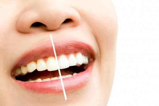 سابلیمینال دندان زیبا