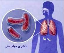اشنایی با بیماری سل