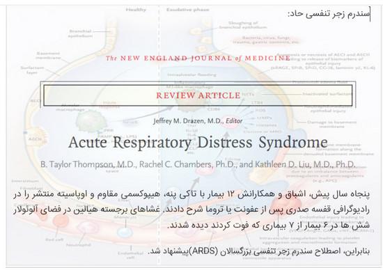 سندروم زجر تنفسی ARDS