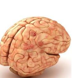 """پاورپوینت درباره """"عفونتهای مغزی"""" در 21 اسلاید"""