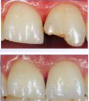 """پاورپوینت """"بهداشت دهان و دندان"""" در 51 اسلاید"""