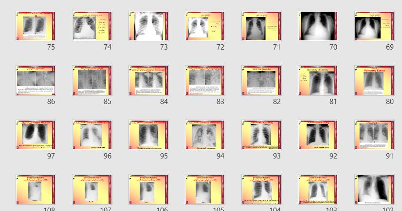 "پاورپوینت تصویری ""تفسیر تصاویر رادیوگرافی"" 215 اسلاید"